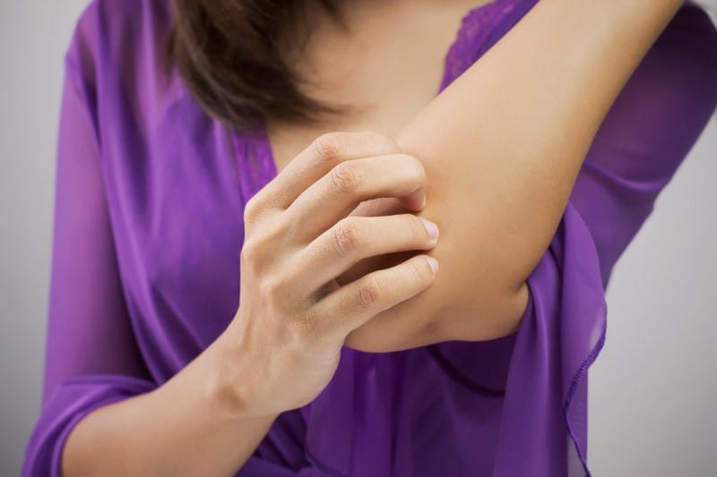 Skin Rash Care For Mosquito Bites